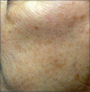 Fraxel Laser Results Before Fraxel Laser