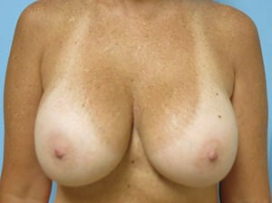 Breast Revision Results After Breast Revision
