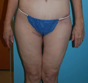 Thigh Lift Results After Thigh Lift