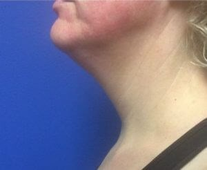 Kybella Results Before Kybella