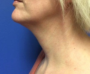 Kybella Results After Kybella