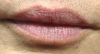 Lip Augmentation Results After Lip Augmentation