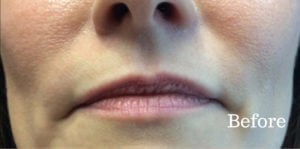 Lip Augmentation Results Before Lip Augementation