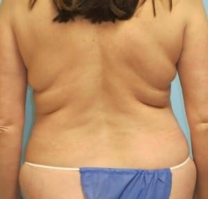 Liposuction Results Before Liposuction