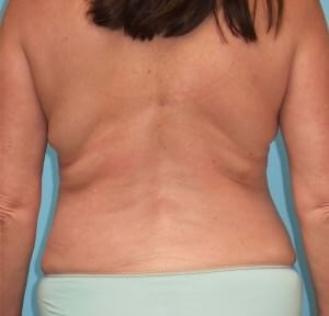 Liposuction Results After Liposuction