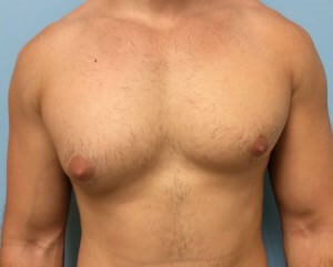 Male Breast Reduction Results Before Breast Reduction