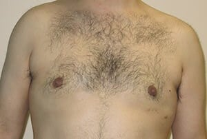 Male Breast Reduction Results After Breast Reduction