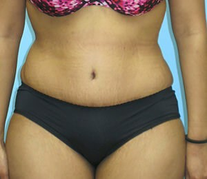 Tummy Tuck Results After Tummy Tuck