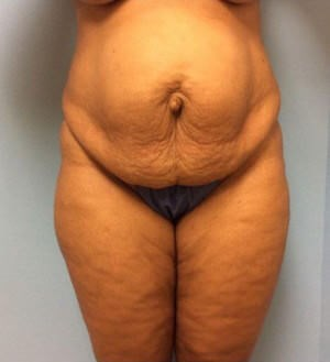 Tummy Tuck Results Before Tummy Tuck