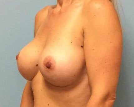 Breast Augmentation Results After Breast Augmentation