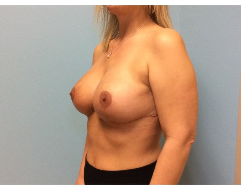 Breast Lift Results After Breast Lift