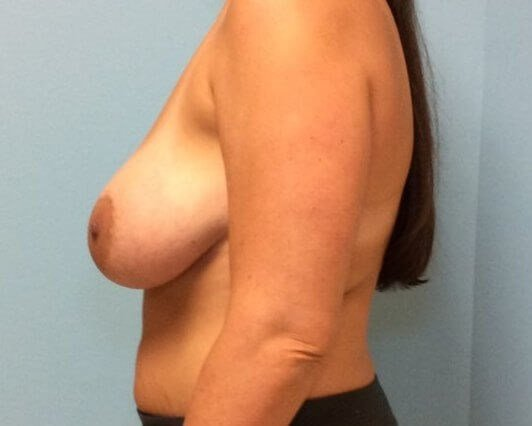 Breast Revision Results Before Breast Revision