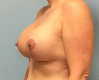 Breast Lift with Implants After