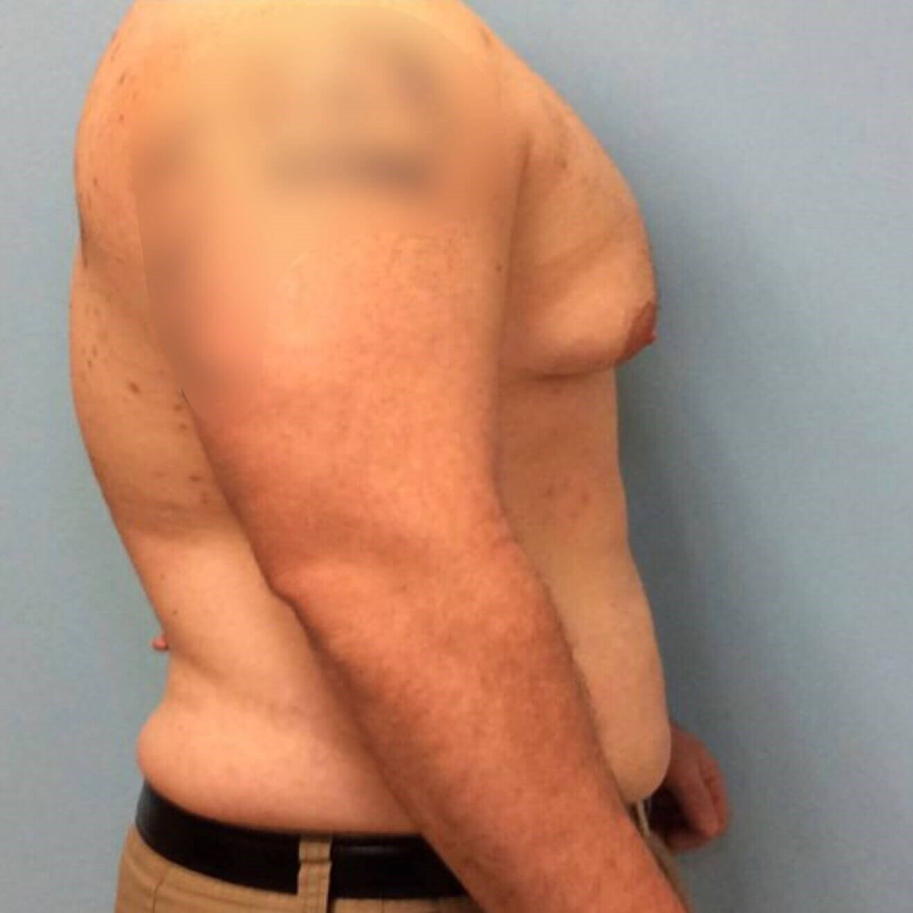 Male Breast Reduction Results Before Male Breast Reduction