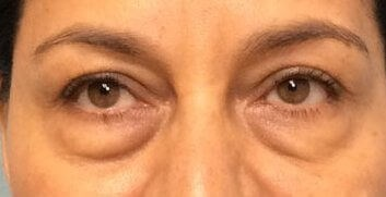 Lower Eyelid Lift Results Before Eyelid Lift