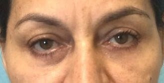 Lower Eyelid Lift Results After Eyelid Lift