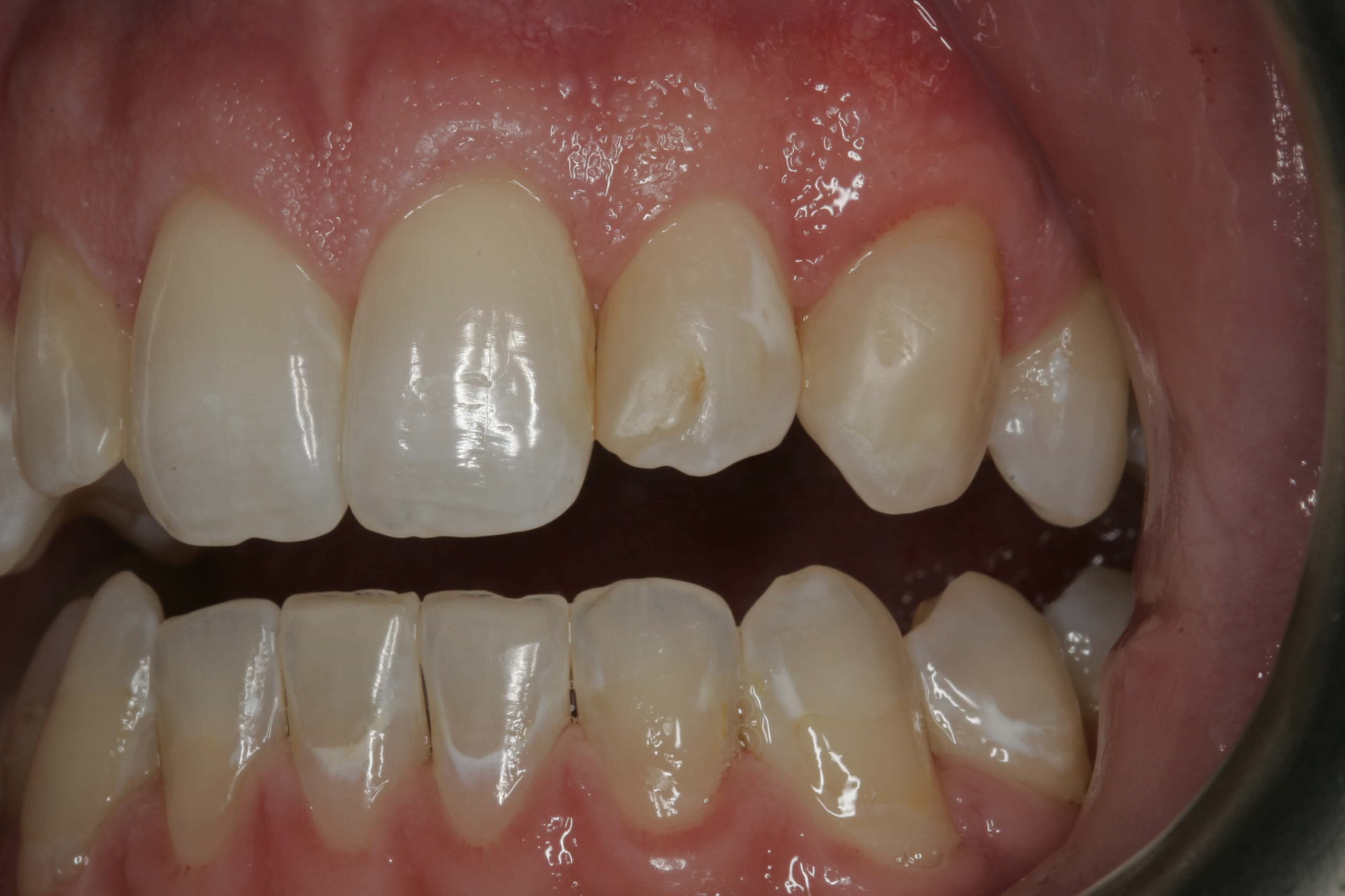 Tooth Colored Filling Before