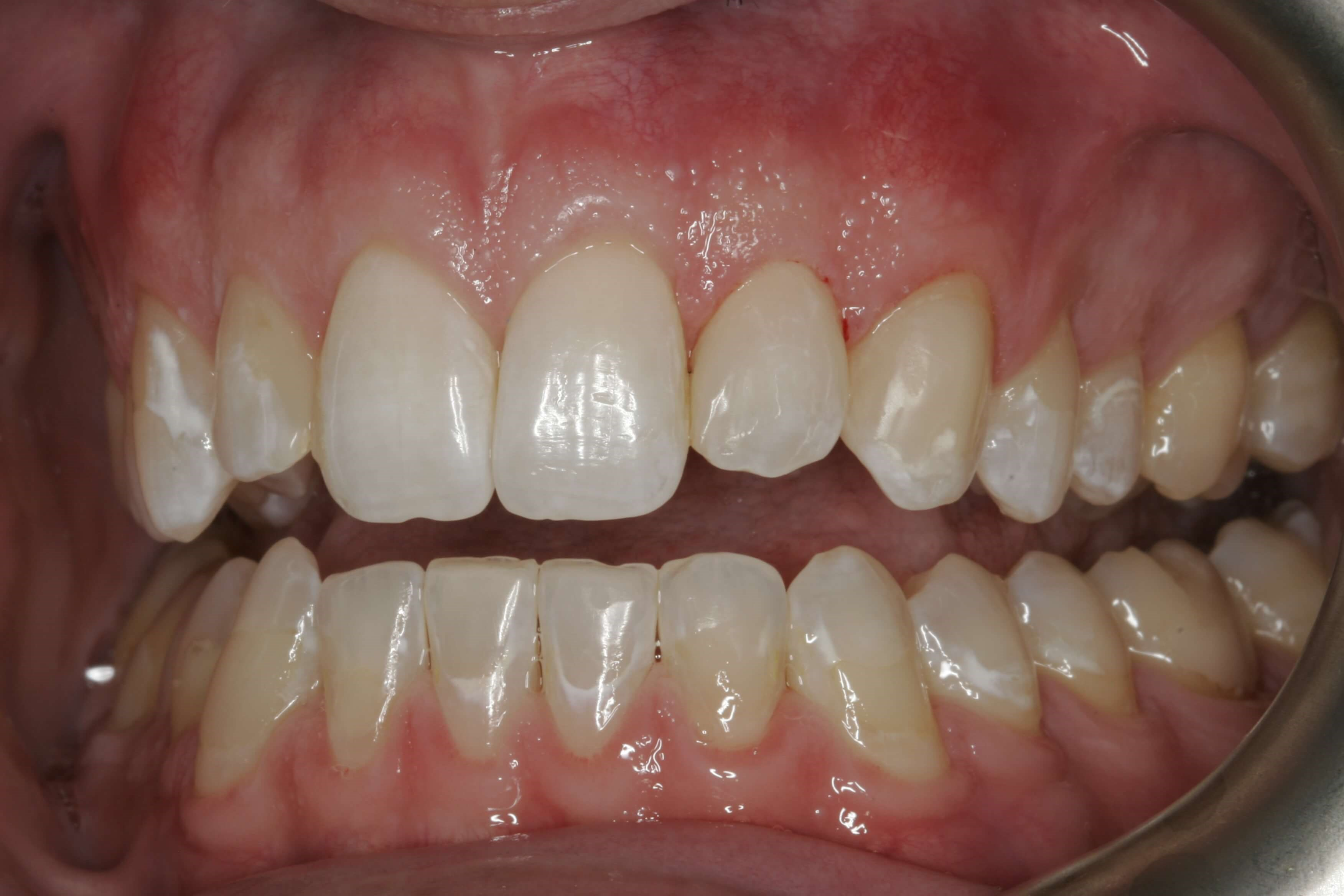 Tooth Colored Filling After