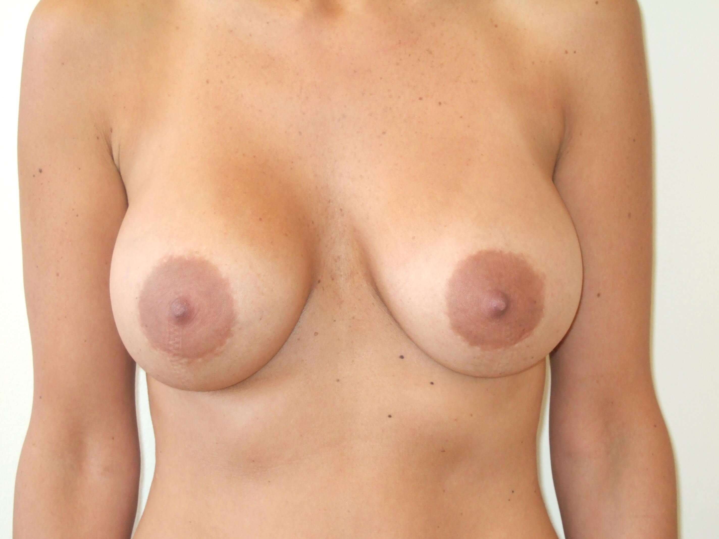 Breast Augmentation Revision Before Breast Revision