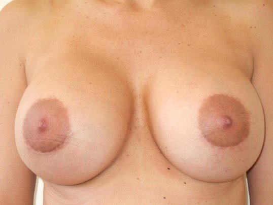 Breast Augmentation Revision After Breast Revision