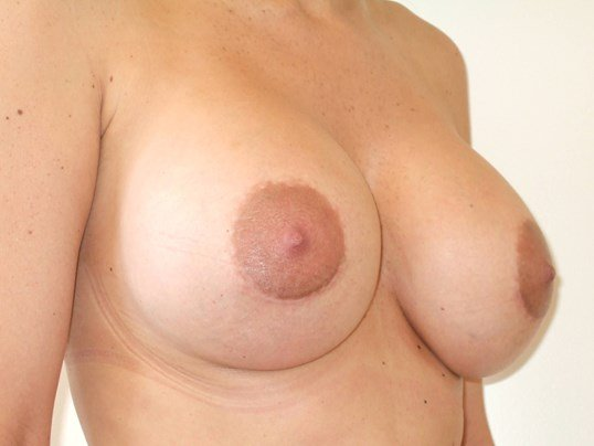 Right Three Quarter View After Breast Revision