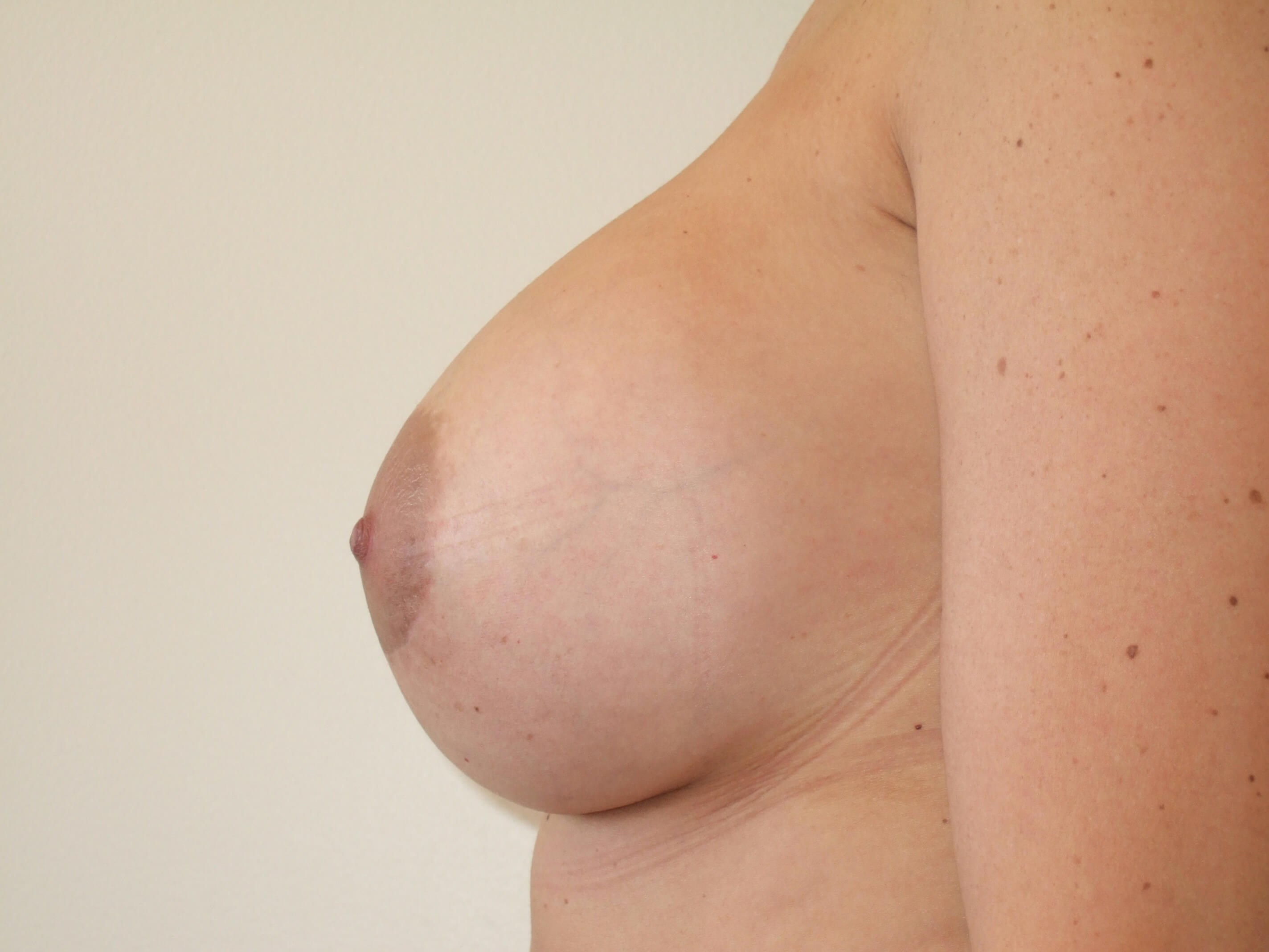 Left Side View After Breast Revision