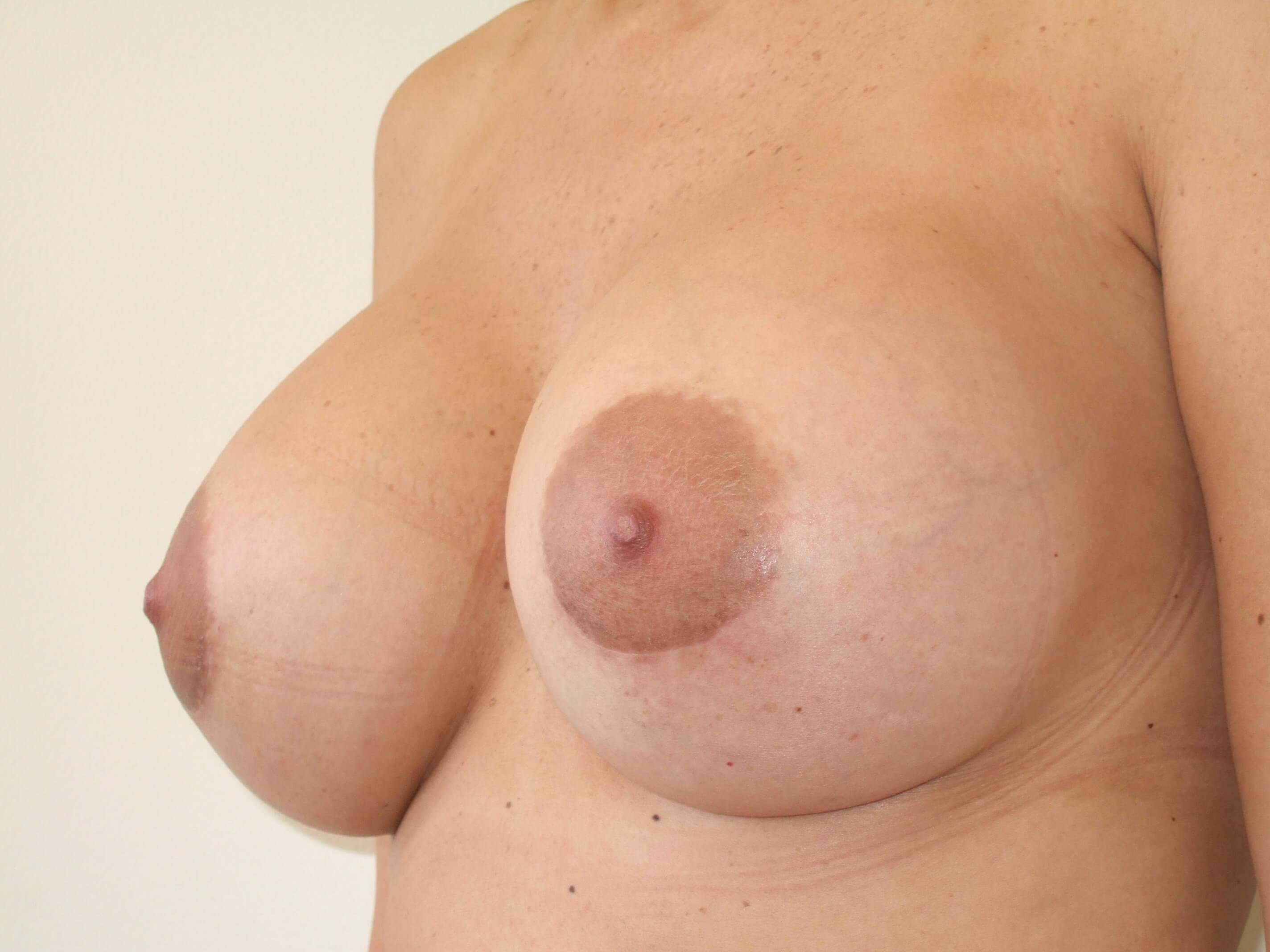 Left Three Quarter View After Breast Revision