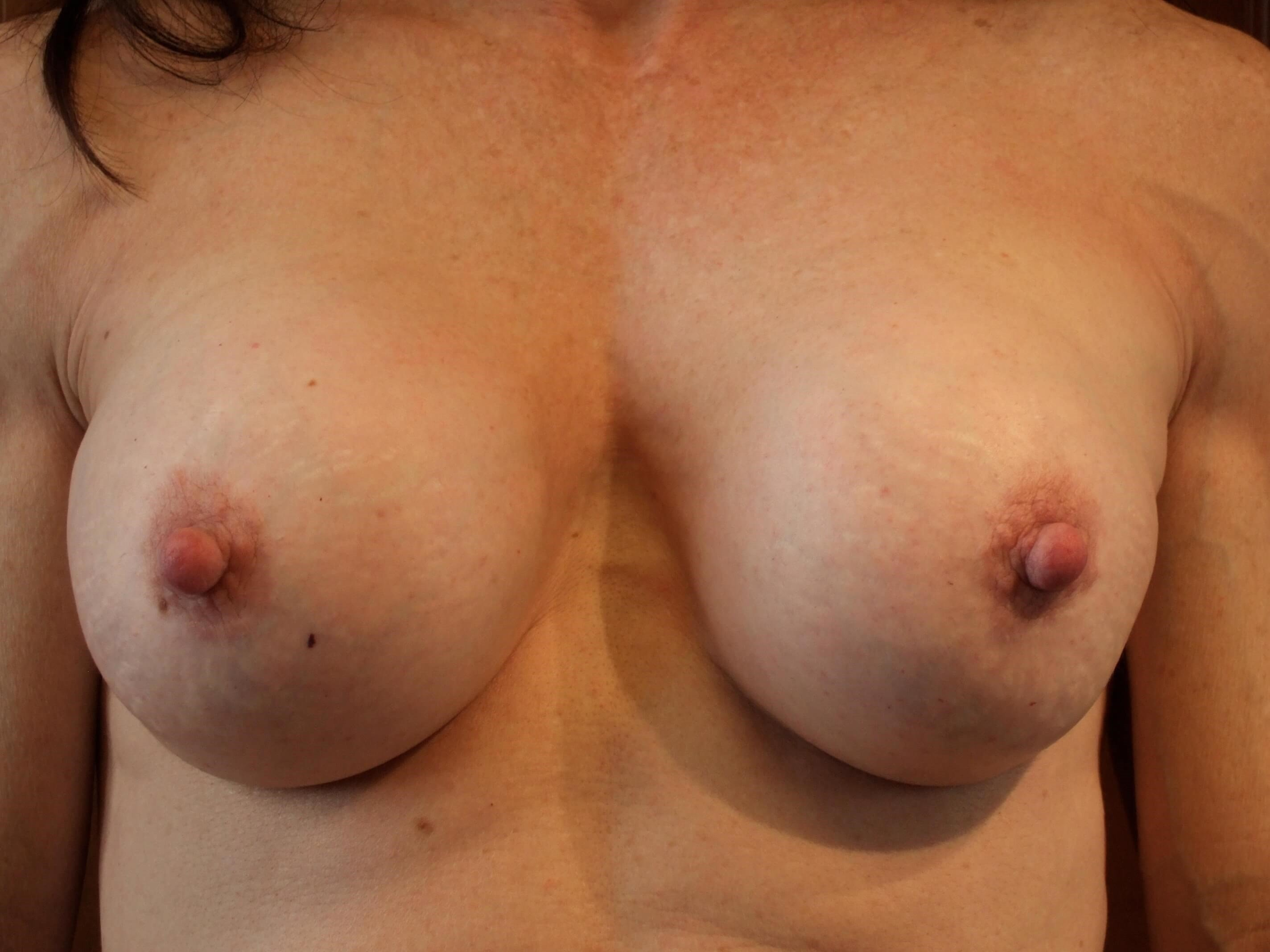 Capsular Contracture Repair Before Breast Correction