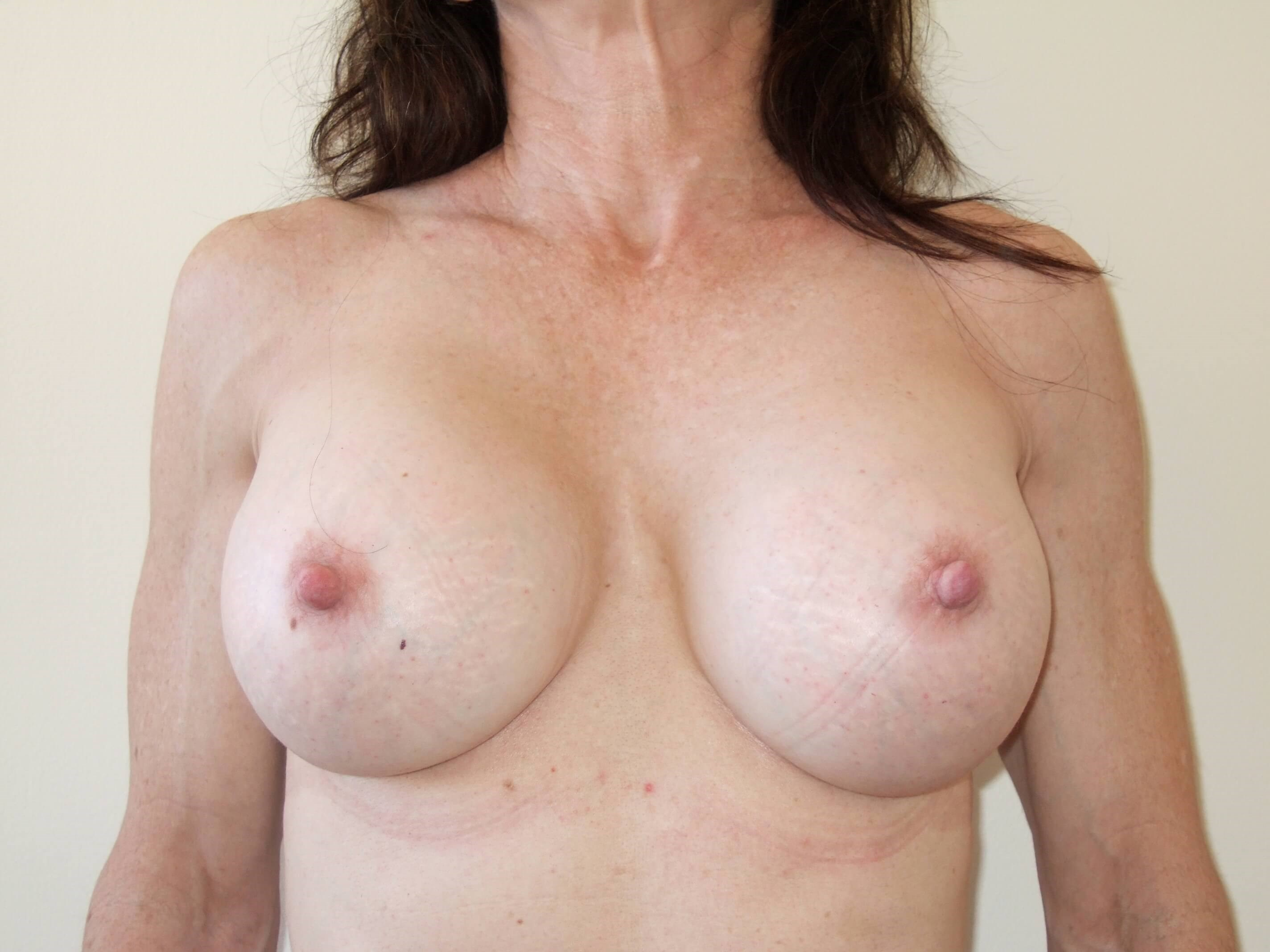Capsular Contracture Repair After Capsulectomy