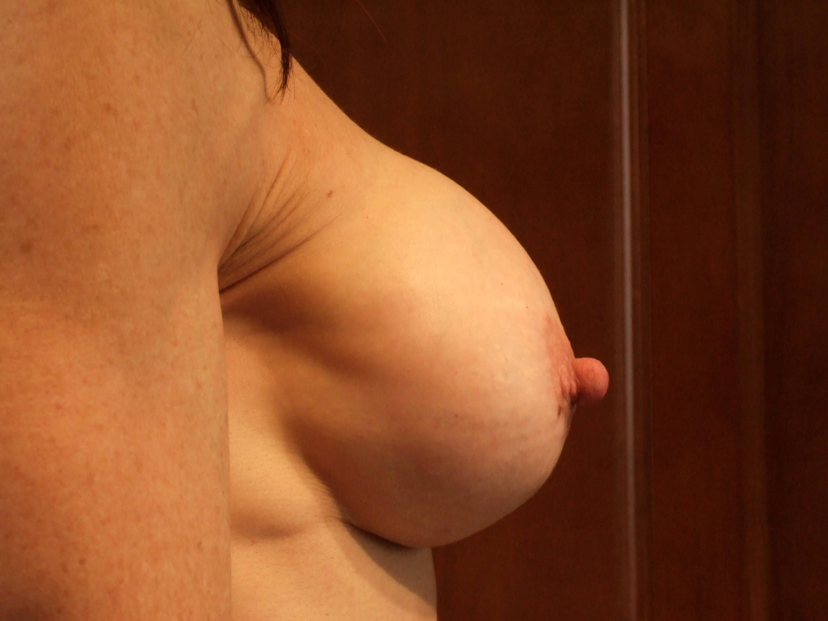 Right Side View Before Breast Correction