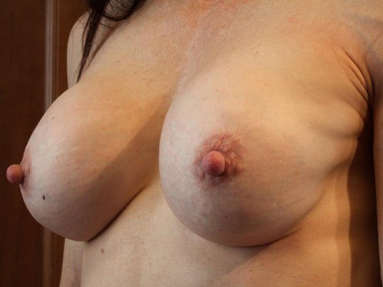 Left Three Quarter View Before Breast Correction