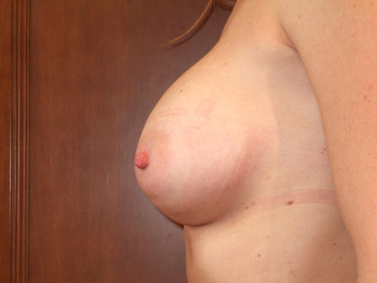 Left Side View Before Breast Correction