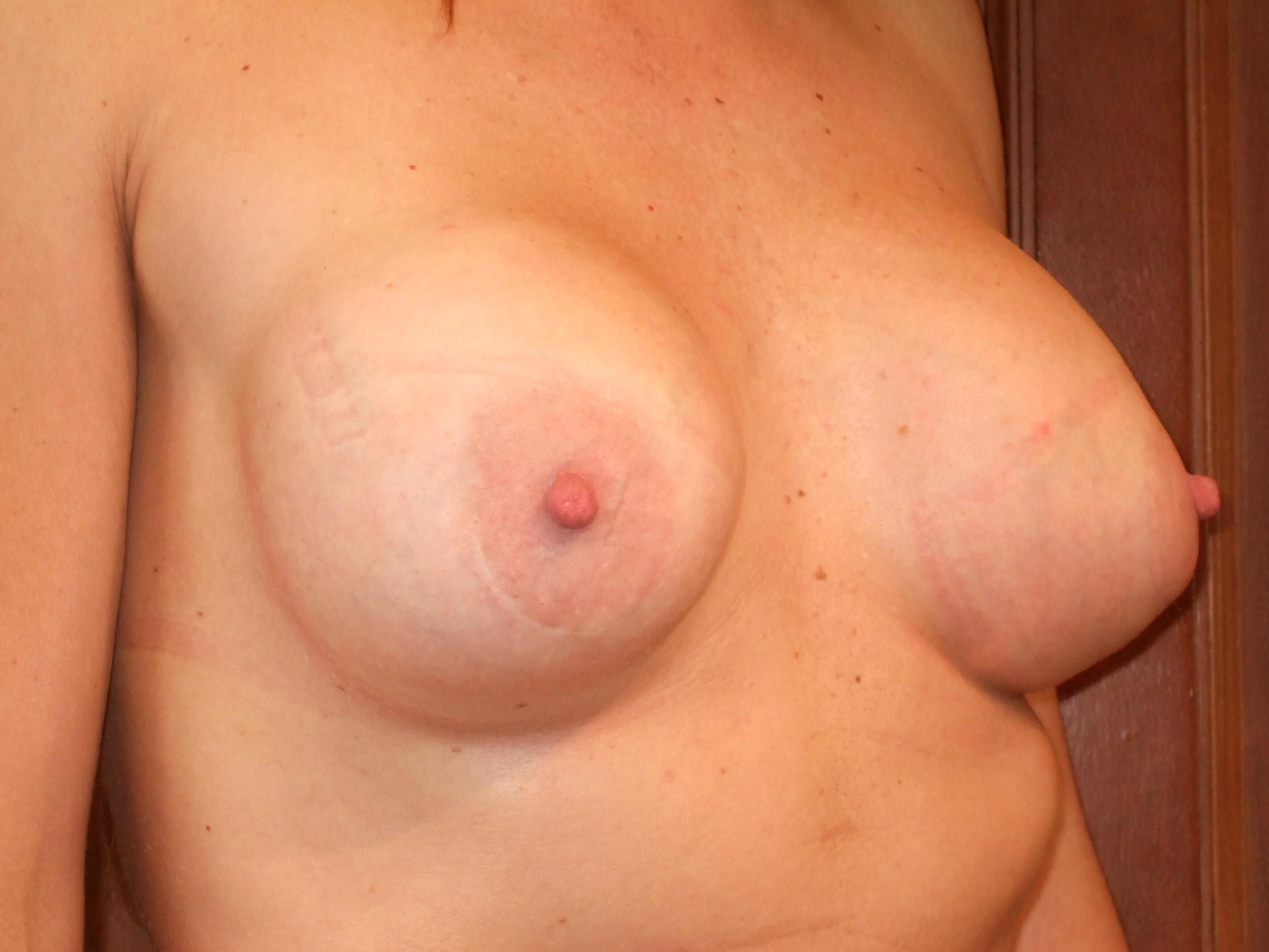 Right Three Quarter View Before Breast Correction
