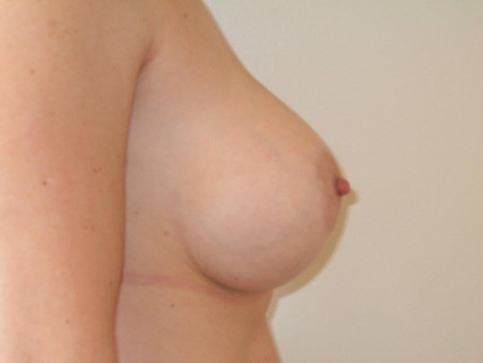 Right Side View After Capsulectomy