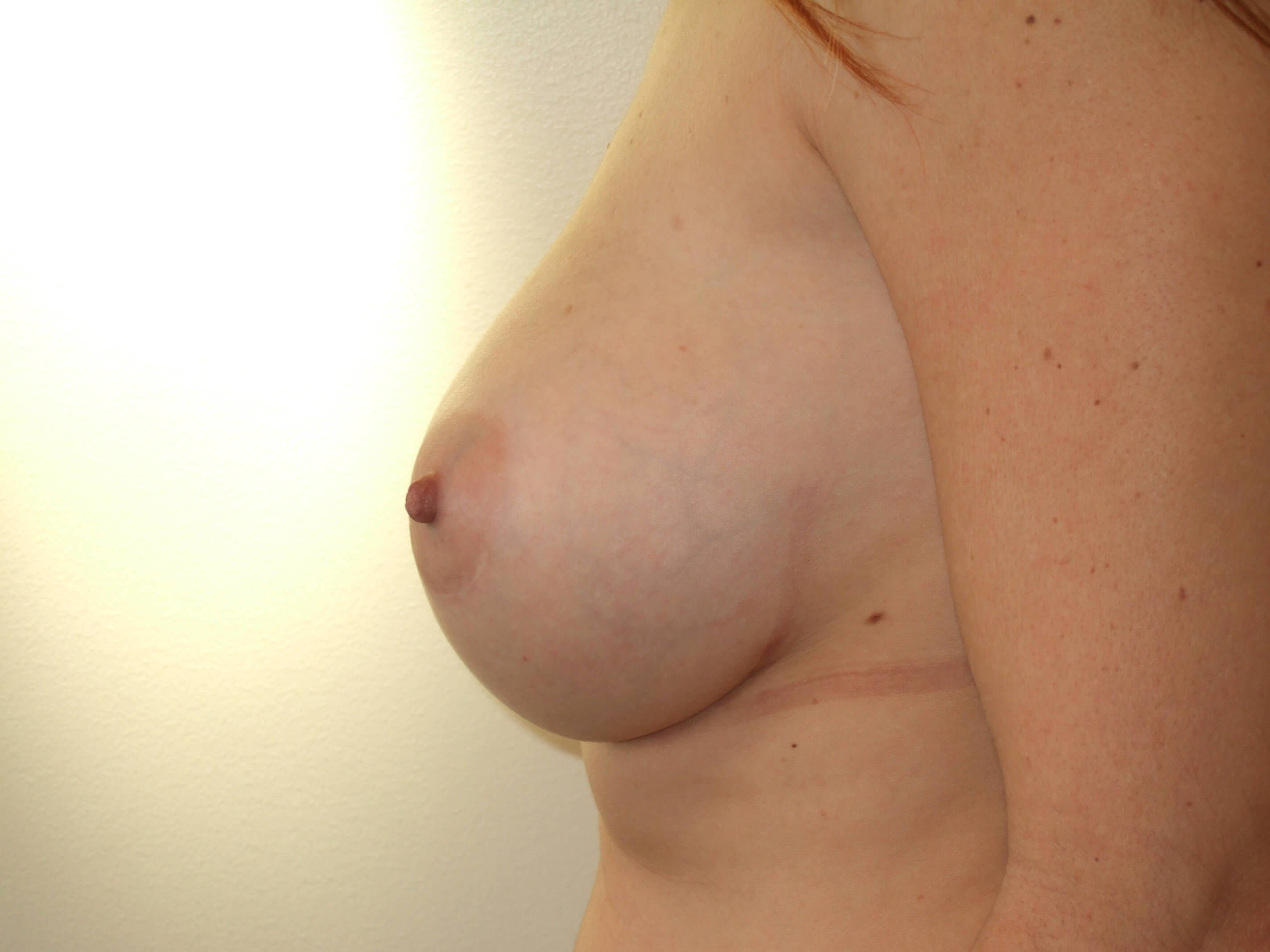 Left Side View After Capsulectomy