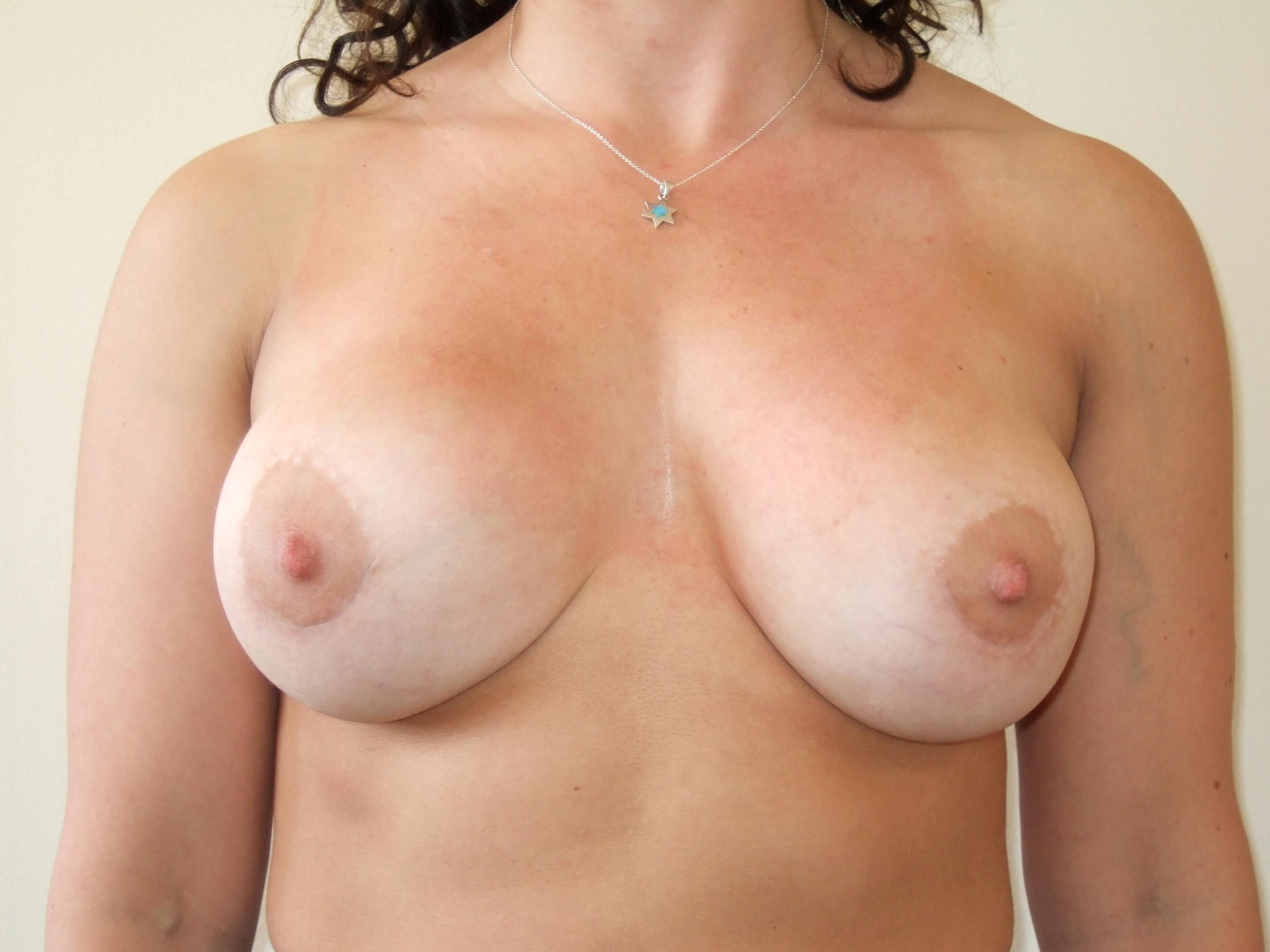 Breast Revision Surgery After Capsulectomy