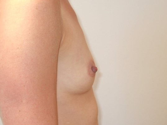 Right Side View Before Saline Breast Implants