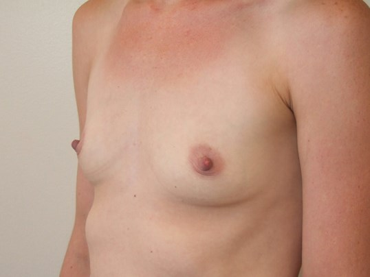Left Three Quarter View Before Saline Breast Implants