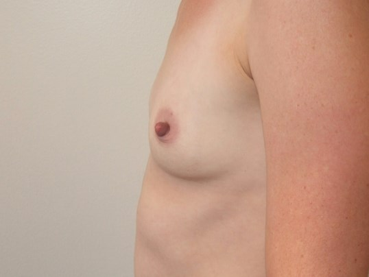 Left Side View Before Saline Breast Implants