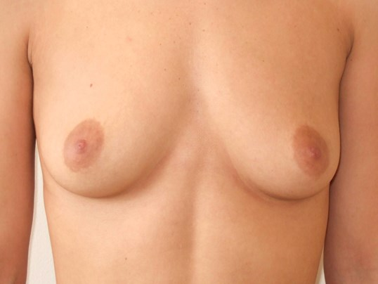 Breast Augmentation: Front Before Saline Breast Implants