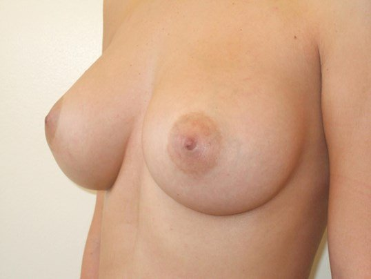 Left Three Quarter View After Saline Breast Implants