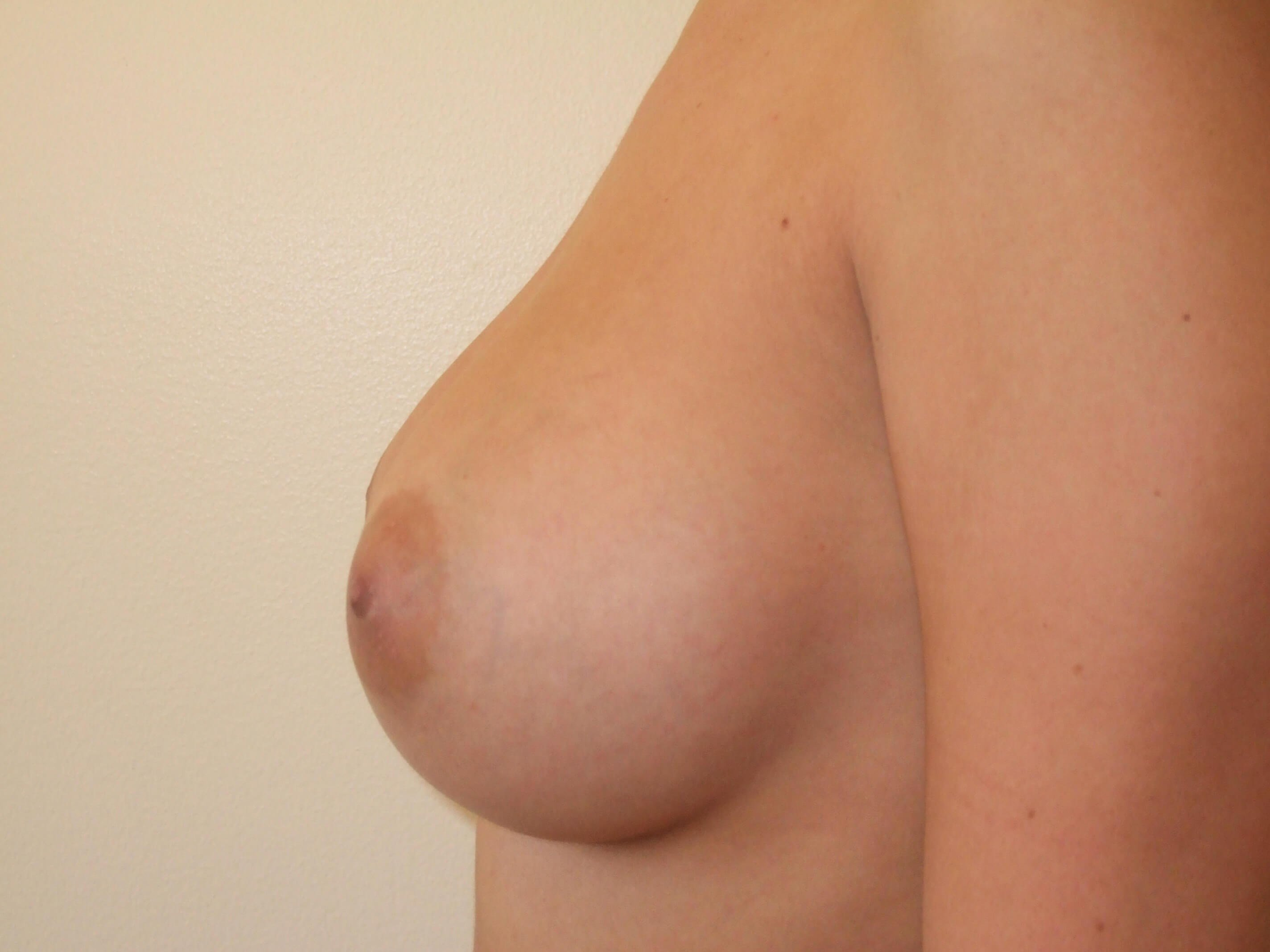 Left Side View After Saline Breast Implants
