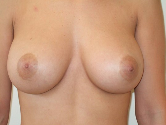 Breast Augmentation: Front After Saline Breast Implants
