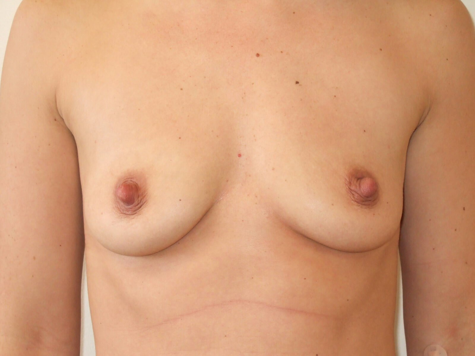 Breast Augmentation: Front Before Breast Implants