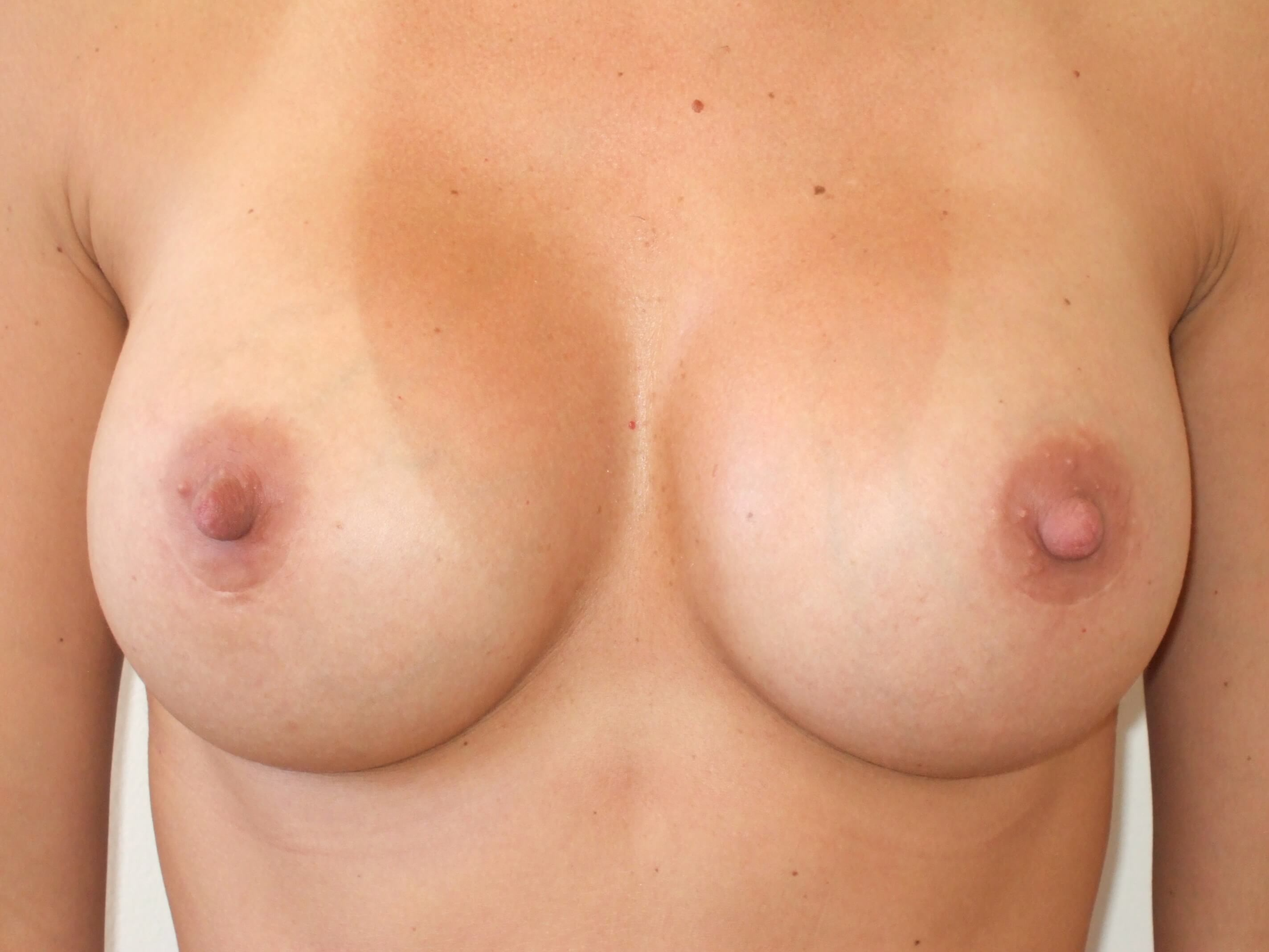 Breast Augmentation: Front After Breast Implants