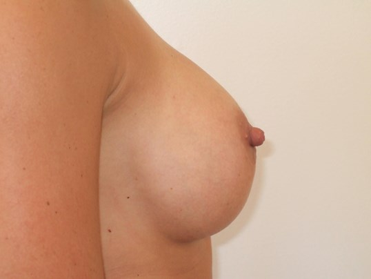 Right Side View After Breast Implants