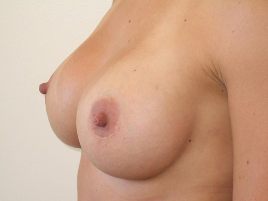 Left Three Quarter View After Breast Implants