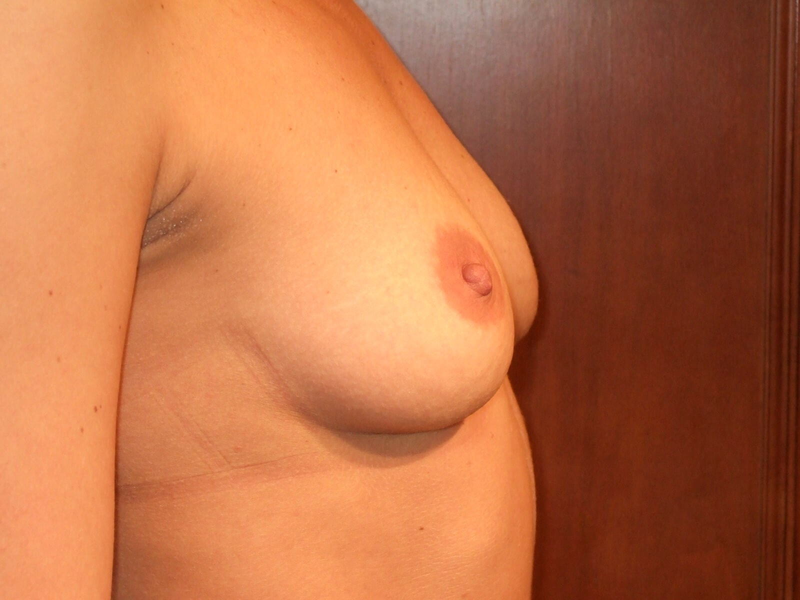 Right Side Before Breast Implants