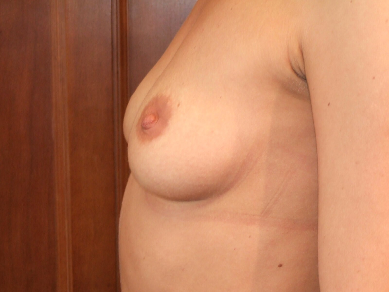 Left Side Before Breast Implants