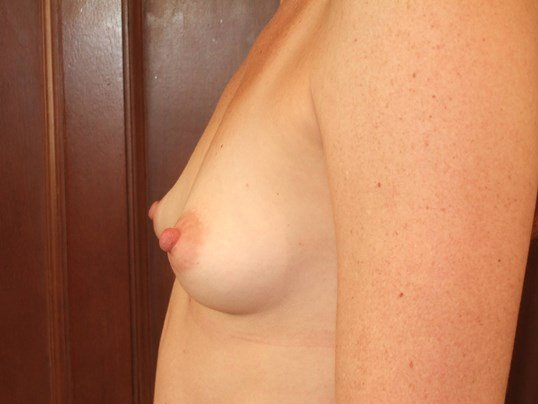 Left S Before Breast Augmentation